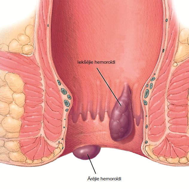 Hemoroīdi ir vēnu mezglveida paplašinājumi, kuru uzdevums ir – palīdzēt saturēt fēces. Problēmas rodas tad, ja vēnu mezgli paplašinās, iekaist, kļūst sāpīgi un asiņo.