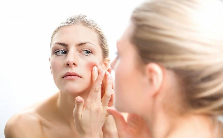 Nesakārtotas emocijas var izraisīt <strong>problēmas ar ādu</strong>