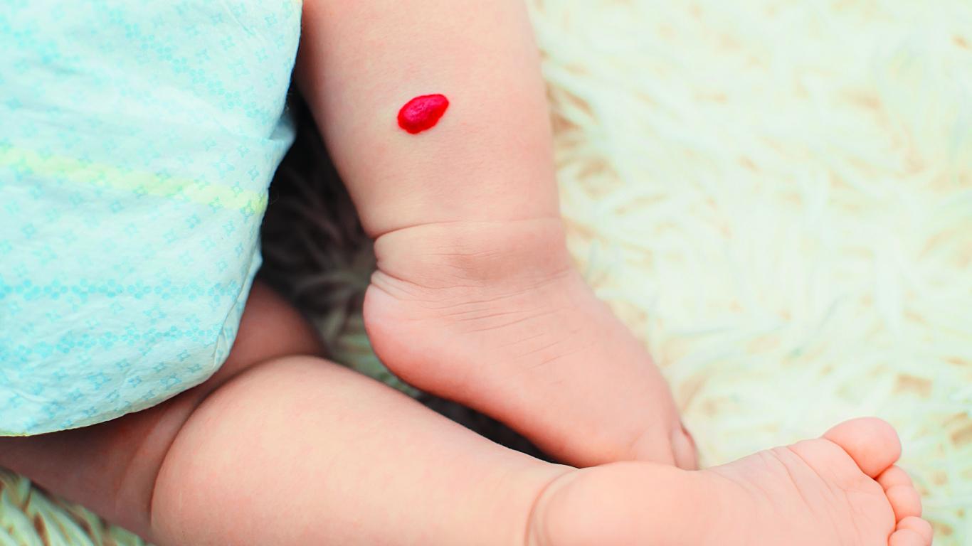 Hemangioma bērnam
