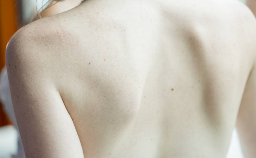 Kas jāzina <strong>par ādas vēzi?</strong>