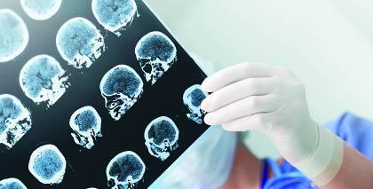 Skumji, bet fakts — <strong>epilepsiju var sajaukt ar sliktu uzvedību</strong>