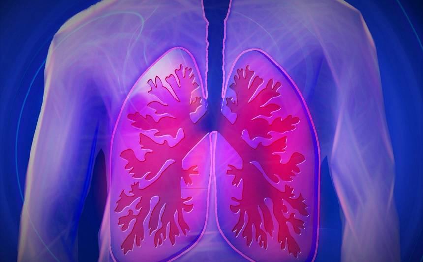 Pazīmes, kas varētu liecināt par <strong>trombu plaušu artērijā</strong>
