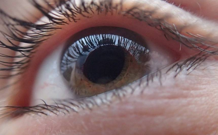 <strong>Glaukoma</strong> var novest līdz aklumam