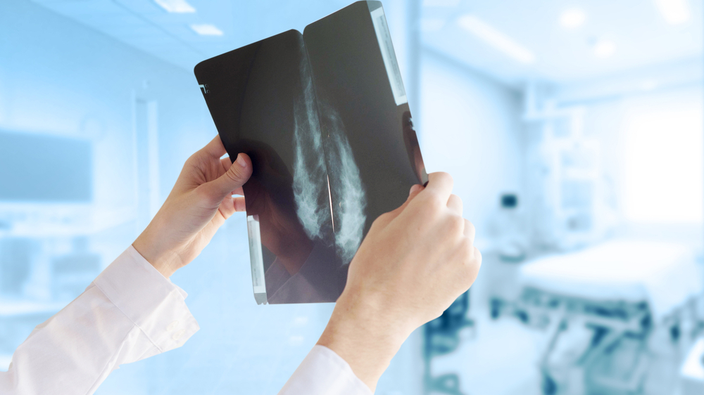 VM sola <strong>uzlabot mamogrāfijas pakalpojumu kvalitāti</strong>