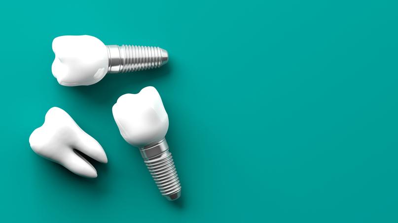 <strong>Zobu implanti — </strong> vai piemēroti visiem?
