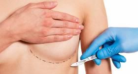 Krūšu implanti — <strong>ēnas puses un riski</strong>